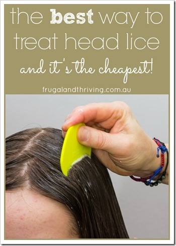treat head lice 2