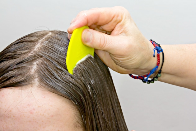effective natural lice treatment